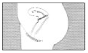 stap-5-gebruik-vrouwencondoom